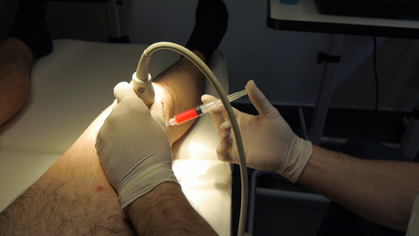 Stem cells injection into my knee